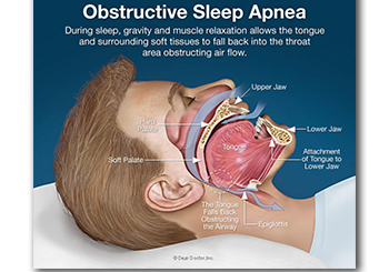 Sleep Apnea, Smiles of Port Orange, Daytona Beach, FL Dentist