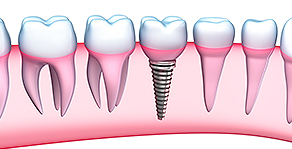 Implants & Mini Implants | Smiles of Port Orange