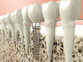 Implants offered in Daytona Beach, FL